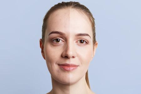 Cerrar el retrato del rostro de la mujer dividido en dos partes: piel pura sana y malsana con puntos negros, contraste entre dos pieles. Concepto de tratamiento facial, cosmetología, medicina y belleza.