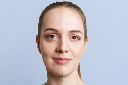 Close up portrait of woman`s face divided into two parts: healthy pure skin and unhealthy with blackheads, contrast between two skins. Facial treatment, cosmetology, medicine and beauty concept Stockfoto