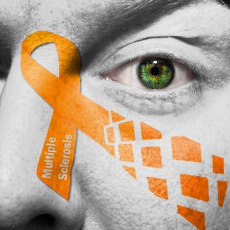 awareness: Multiple Sclerosis is a disease of the brain and spinal cord. The Orange Ribbon represents MS. Stock Photo