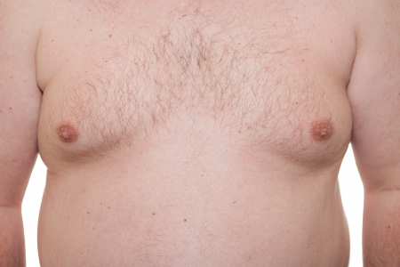Male thorax showing early stage Gynecomastia or man boobs also a synonym of obesity