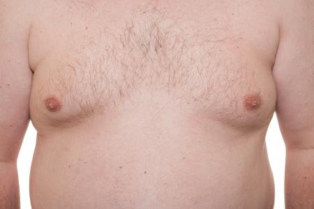 big boobs: T�rax masculino que muestra ginecomastia etapa temprana o senos masculinos tambi�n un sin�nimo de la obesidad