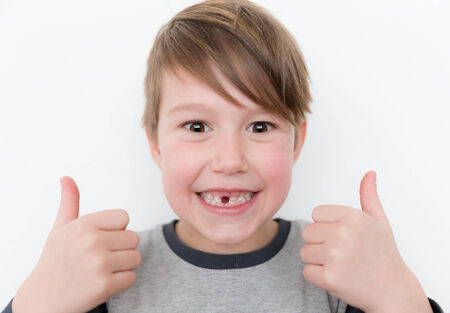 Little happy boy missing a tooth with two thumbs up
