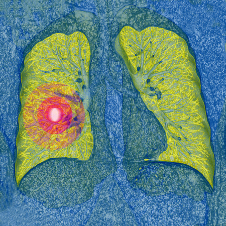 lungenkrebs: Lungenkrebs-CT