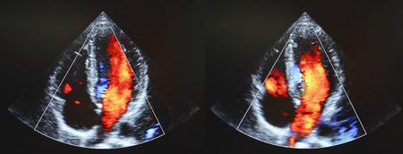 myocardium: Heart echocardiography