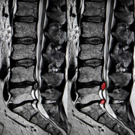 Bederní disk výčnělek, MRI Reklamní fotografie