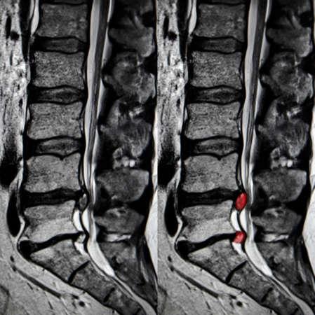 Lumbar disc protrusion, MRI