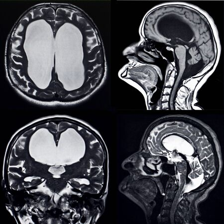 atrophy: Brain MRI