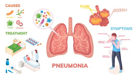 Pneumonia lungs disease vector infographics on symptoms, cause and medical treatment. Pneumonia lungs infection bacteria and viruses, disease symptoms, transmission prevention and hospitalization