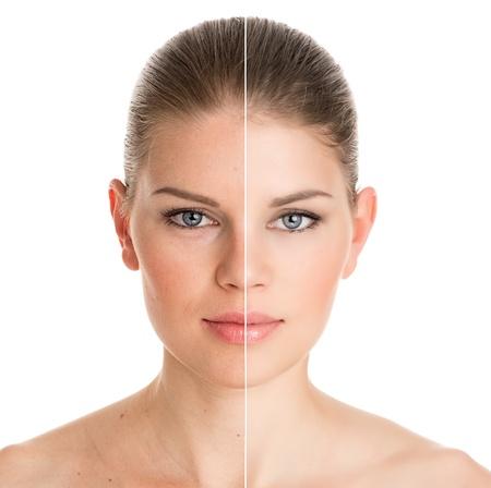 化粧品の手術前後の若い可愛い白い背景で隔離の女性の肖像画 写真素材