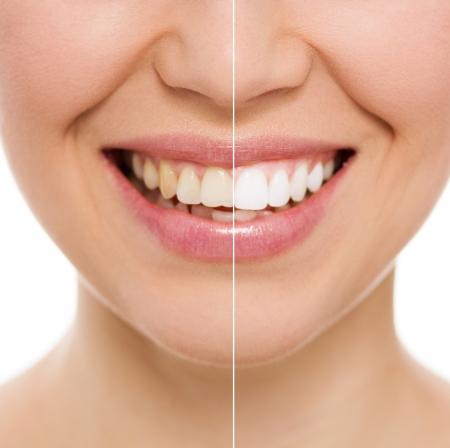 젊은 백인 여성의 미소의 근접 촬영 전 치아 표백 또는 미백 치료 후
