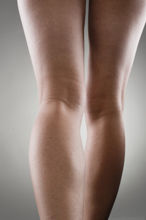joint inflammation: Close-up of hurt woman legs. Tendon inflammation and joint pain concept. Stock Photo