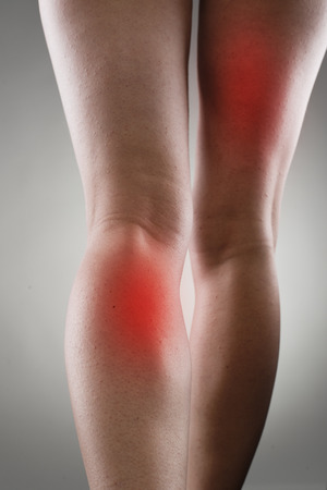 physical injury: Injured female legs with red spots. Muscle strain and stretch treatment concept. Stock Photo