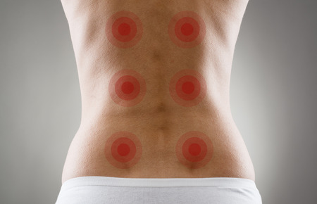Close-up of female body over grey background. Acupressure shown with red spots on womans back. Backache and treatment.