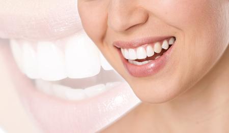 dientes sanos: El tratamiento de los dientes, blanqueamiento y protecci�n. Primer plano de perfecta mujer blanca \\ Foto de archivo