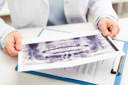 Woman dentist looking at teeth x-ray in dental clinic office. Doctor analyzing scanned jaw of his patient. Shallow depth of field.