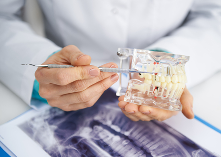 Woman practitioner studying dental model and teeth x-ray. Close-up of female dentist's hands with tools. Archivio Fotografico