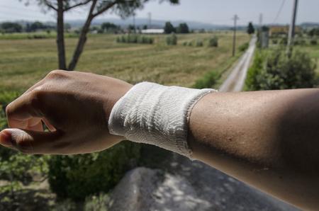 luxacion: Vista del vendaje debido a un esguince Foto de archivo