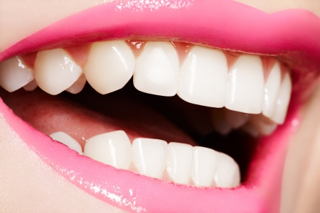 Macro happy woman's smile with healthy white teeth, bright pink gloss lips make-up. Stomatology and beauty care  photo