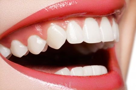Macro happy womans smile with healthy white teeth, bright red gloss lips make-up. Stomatology and beauty care