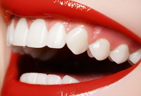 orthodontic: Close-up happy female smile with healthy white teeth, bright red gloss lips make-up. Cosmetology, dentistry and beauty care. Macro of womans smiling mouth  Stock Photo
