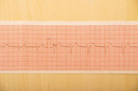 cardioid: Cierre de detalles de ECG Graph