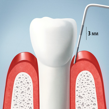 dental examination: Periodic comprehensive dental examination to have a healthy mouth and teeth