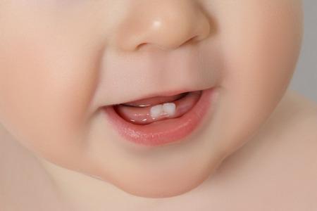 dientes sanos: primer plano de la boca del bebé con dos subidas dientes Foto de archivo