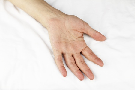 Open palm connected to an arm lying on a white massage table sheet. Stock Photo - 9745997