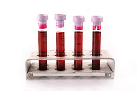 tubo de ensayo: Tubos de ensayo m�dicos con sangre en titular sobre fondo blanco