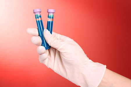 Test tubes with fluid in hand on red background photo