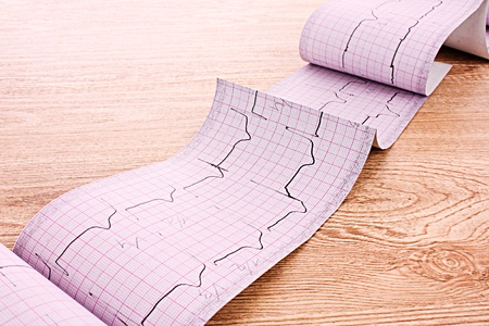 printout: ECG printout on wooden background Stock Photo