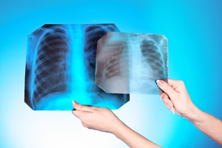 X-Ray Image of two chest on blue background in hand. One man in different age photo
