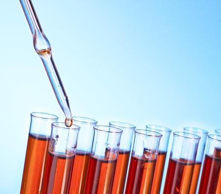 blood test: Test tubes closeup on blue background Stock Photo