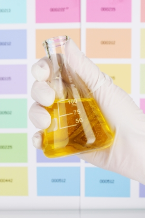Flask with yellow liquid in hand on color samples background photo