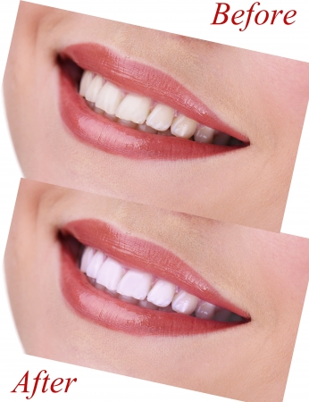 word of mouth: Woman smiling with teeth close-up Stock Photo