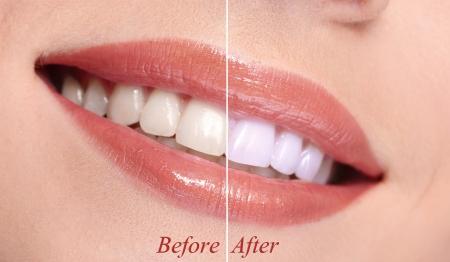 zuby: Žena s úsměvem zuby close-up