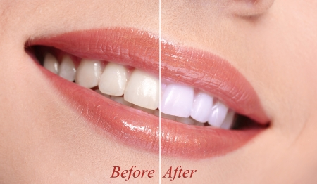 teeth whitening: Woman smiling with teeth close-up Stock Photo