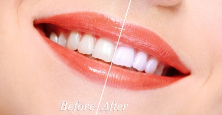 Woman smiling with teeth close-up photo