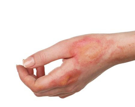 Horrible burns on female hand isolated on white