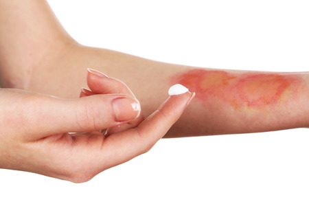 Treatment of burns on female hand, isolated on white 스톡 콘텐츠