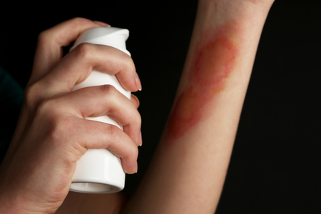 Treatment of burns by spray on female hand on black background