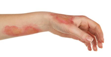 Afschuwelijke brandwonden aan vrouwelijke kant geïsoleerd op wit