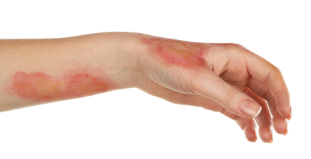 Horrible burns on female hand isolated on white