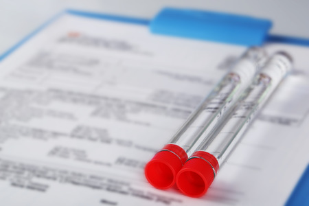 Test tubes and clipboard with medical history form close up Stock Photo