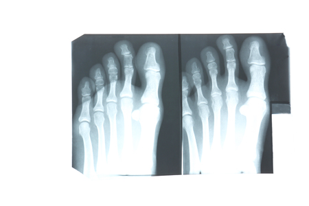 X-ray of feet isolated on white