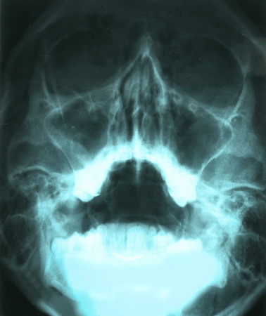 X-ray of human head isolated on white Stok Fotoğraf