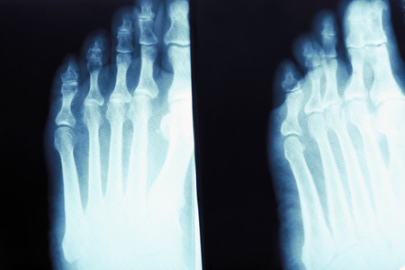 X-ray of feet, closeup Stok Fotoğraf