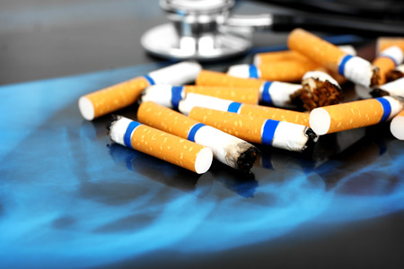 Cigarettes and stethoscope on x-ray lung, close up Stock Photo