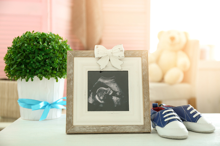 Frame with ultrasound photo and baby shoes on table