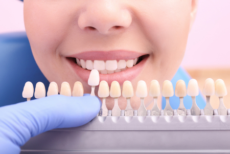 Dentist checking and selecting color of young womans teeth, closeup Stock Photo